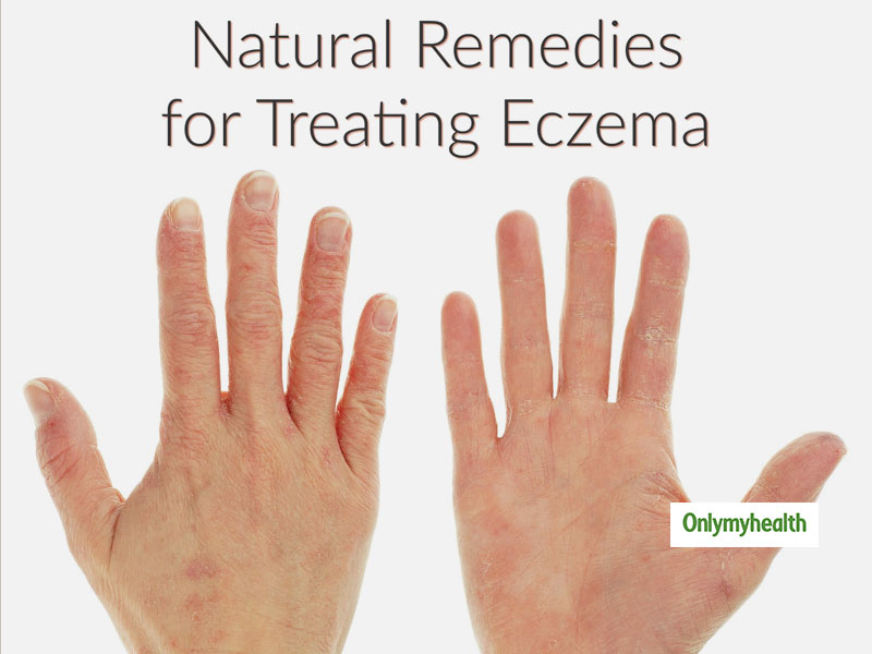 Home Remedies for Eczema: Natural Treatment of Eczema with Echinacea