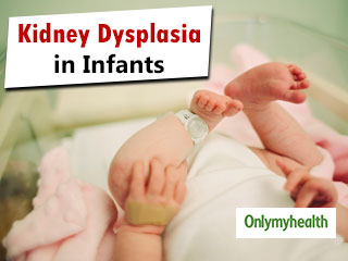 Infants In Womb Can Develop <strong>Kidney</strong> <strong>Dysplasia</strong>