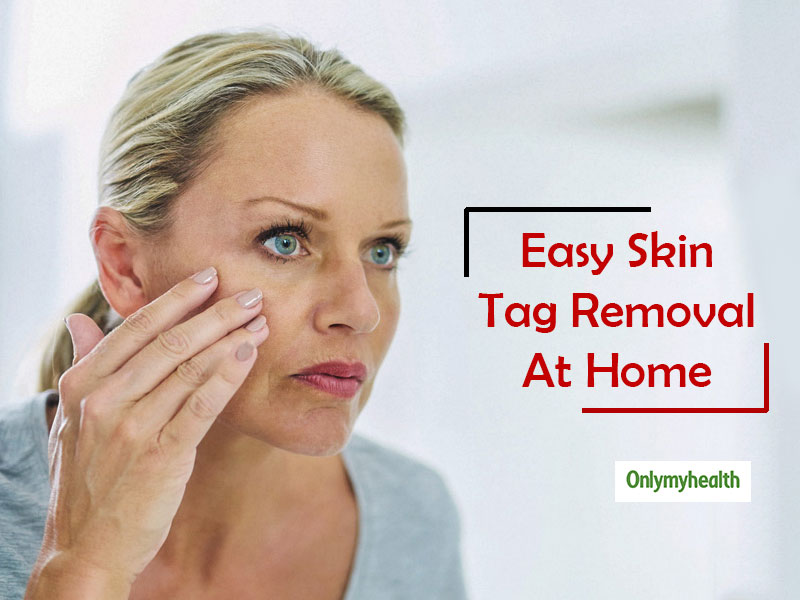 Skin Tags Home Remedies: Here's How You Can Naturally Remove Skin Tags