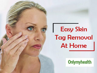 Skin Tags Home <strong>Remedies</strong>: Here's How You Can Naturally <strong>Remove</strong> Skin Tags