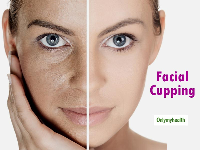 Face Cupping: This Old Treatment Offers Amazing Benefits to the Skin