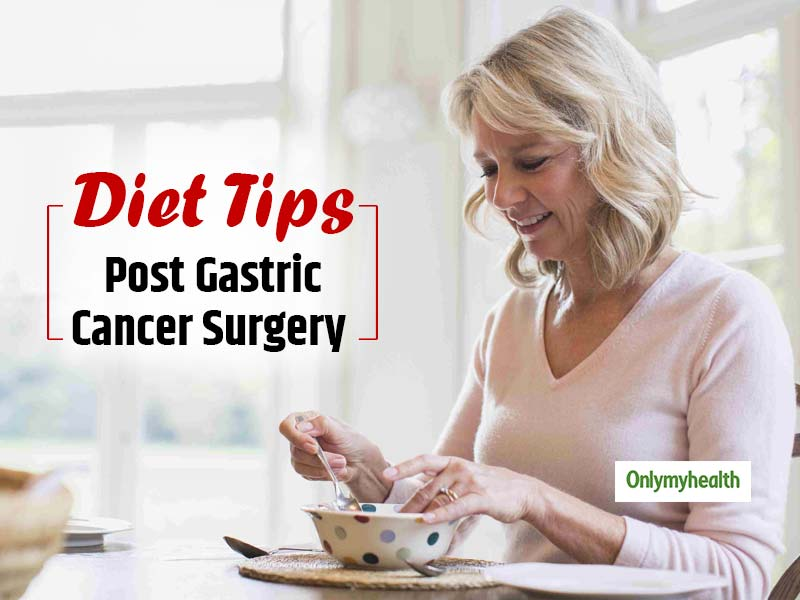 Have you had your stomach removed? Find out how and what to eat after gastric cancer surgery