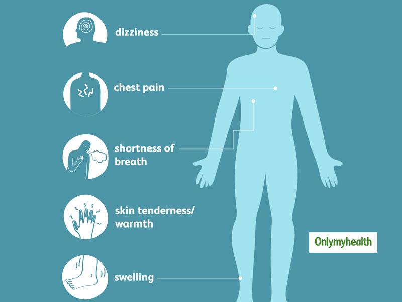 Top 4 symptoms of blood clots