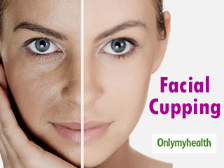 Facial Cupping: This Ancient Treatment Offers Amazing Skin <strong>Benefits</strong>