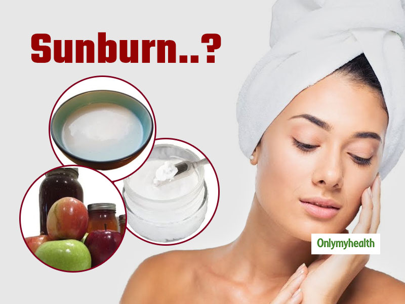 Natural Home Remedies For Sunburn: 6 Best Tips To Cool Down Your Skin