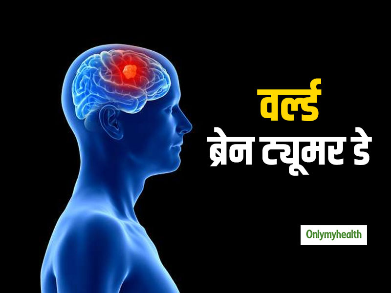 World Brain Tumer Day 2019: How Does Breast Tumor Start? Learn from Expert All things related to it