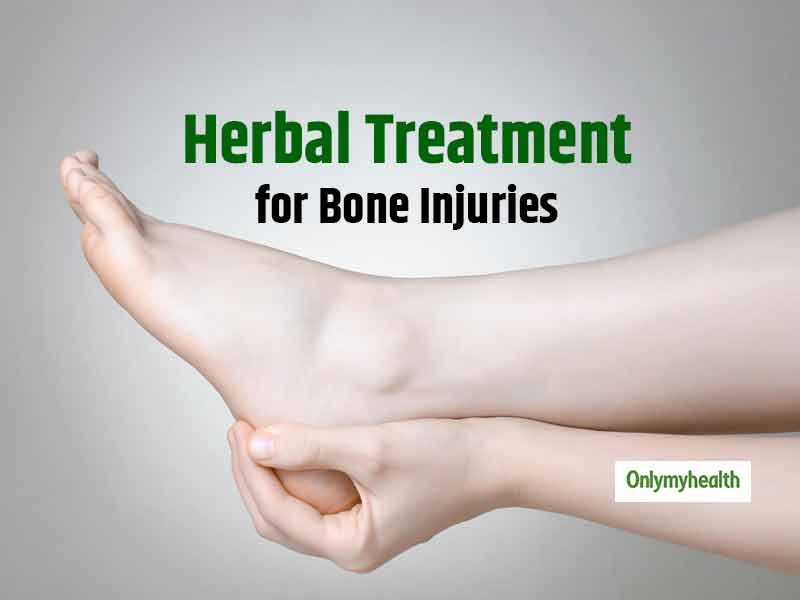 Treat Bone Injuries the Herbal Way