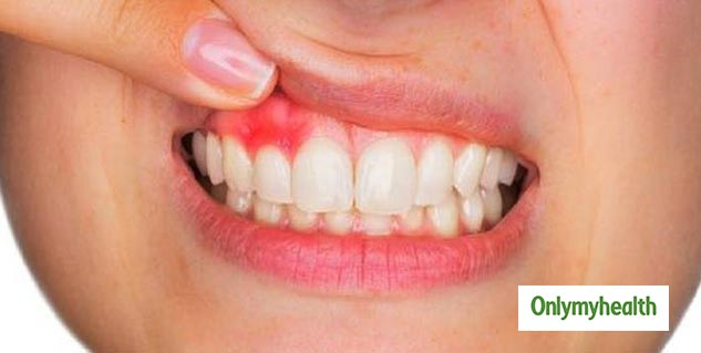 Know Signs of Tooth Infections after Wisdom Teeth Extraction