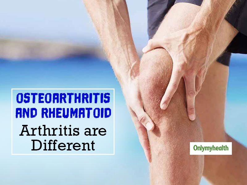 There is a Fine Difference Between Osteoarthritis and Rheumatoid Arthritis