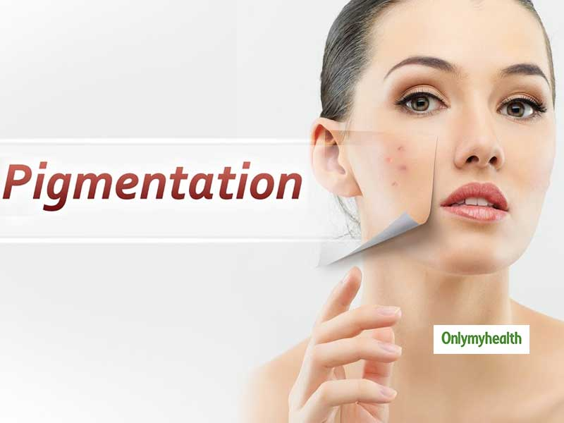 Get Rid of Skin Pigmentation With These Simple Tips