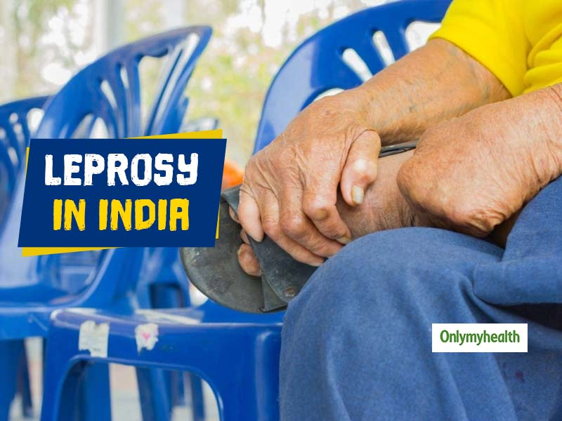 Leprosy in India: 'Eliminated' in 2005 But Continues to Grip The Country Due to Ignorance