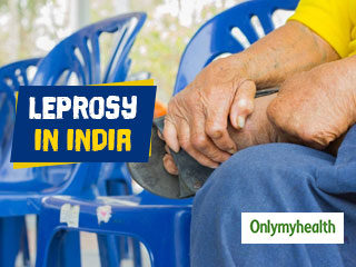 Leprosy in <strong>India</strong>: 'Eliminated' in 2005 But Continues to Grip The Country Due to Ignorance