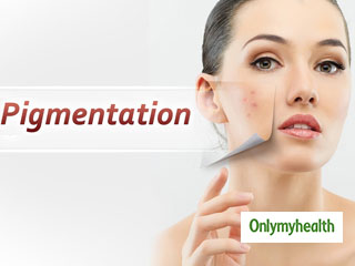 Get Rid of Skin <strong>Pigmentation</strong> With These Simple Tips
