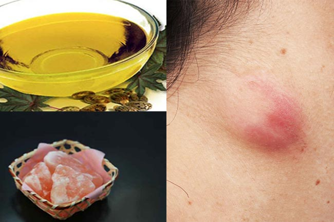 Effective natural remedies to cure sebaceous cysts | Home