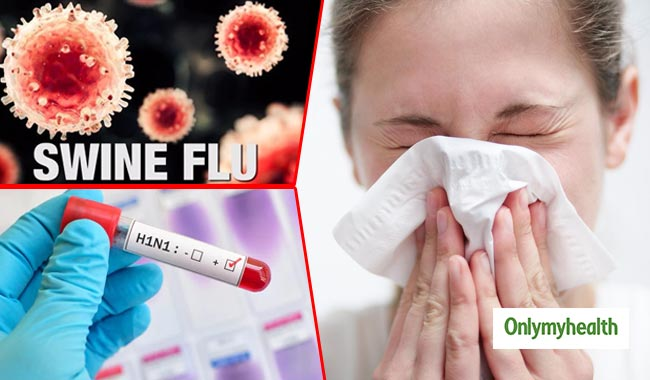 Swine flu: causes, symptoms and more