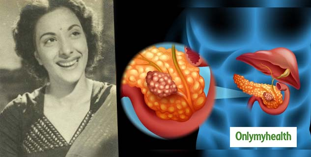 Remembering Nargis Dutt: Know All About Pancreatic Cancer the Reason Behind Her Death