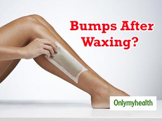 Bumps After Waxing? Ways to Treat Waxing Bumps Naturally
