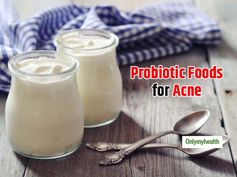 Probiotic Foods for Acne: Know 5 foods which may help