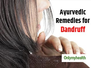 Simple <strong>Ayurvedic</strong> <strong>Remedies</strong> for Dandruff