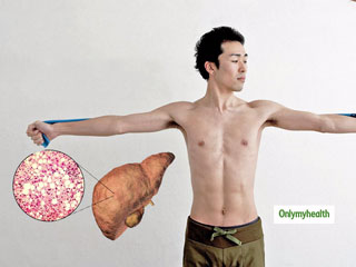 Can You Be Skinny And Have Fatty <strong>Liver</strong> Disease?