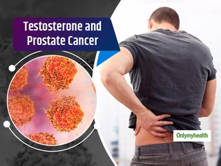 Men With High Testosterone Levels Are At A Higher Risk Of <strong>Developing</strong> Prostate Cancer