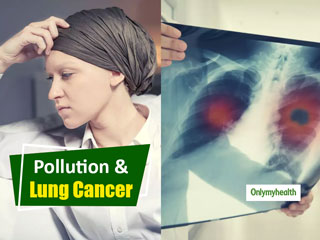 Lung Cancer Awareness <strong>Month</strong>: Lung Cancer Incidences in Non-Smokers Spike, Is Pollution To Be Blamed?