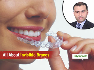 No Wires And No Pain, Dr Gupta Says To Opt For Invisible Braces Over The Conventional Ones