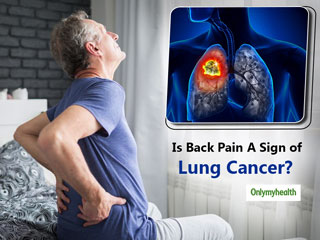 What Is The Correlation Between Back Pain and Lung <strong>Cancer</strong>?