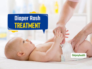 Newborn Care Week 2019: 8 Home Remedies For <strong>Severe</strong> Diaper Rash