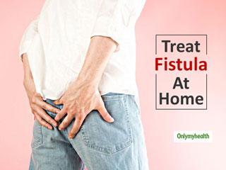 Proven Home Remedies For Fistula To Ease The Pain That Is Making Your Life Difficult