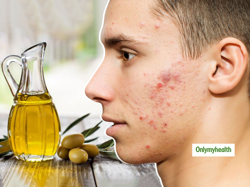 Olive Oil Benefits For Skincare: Get Rid Of Facial Blemishes For A Natural Glowing Skin