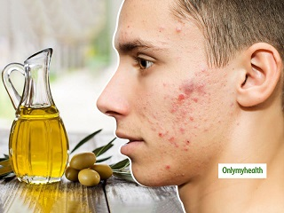 Olive Oil Benefits For Skincare: Get Rid Of Facial Blemishes For A Natural <strong>Glowing</strong> <strong>Skin</strong>