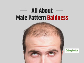 A Guide To Male Pattern Baldness
