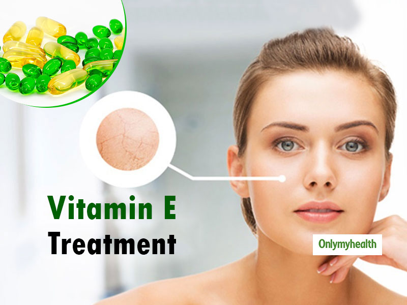 Homemade Vitamin E Skin Treatment For Natural Glow On Your Face