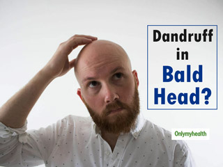 Can Bald <strong>People</strong> Get Dandruff?