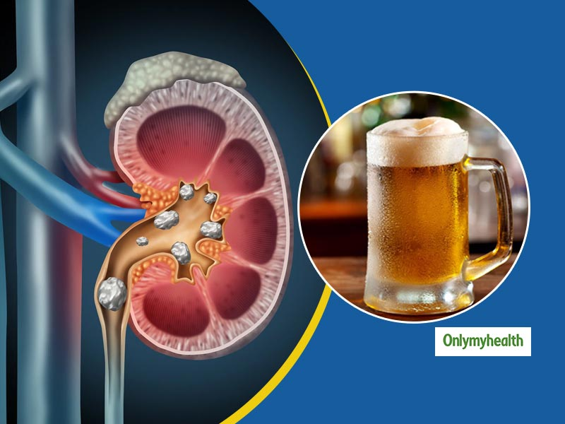 Can Drinking Beer Help Get Rid Of Kidney Stones