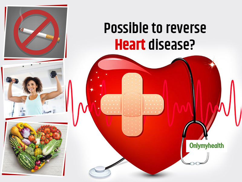 Is it Possible To Reverse Heart Diseases? Dr Dash Explains It All