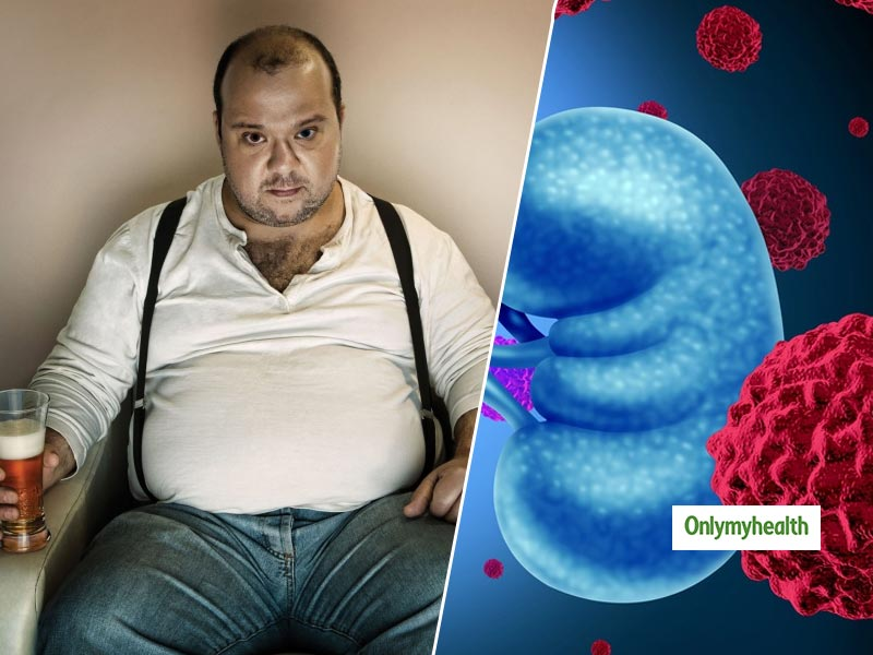 Kidney Cancer Causes, Symptoms And Treatment: Obesity And Alcohol Addiction Could Be The Reason