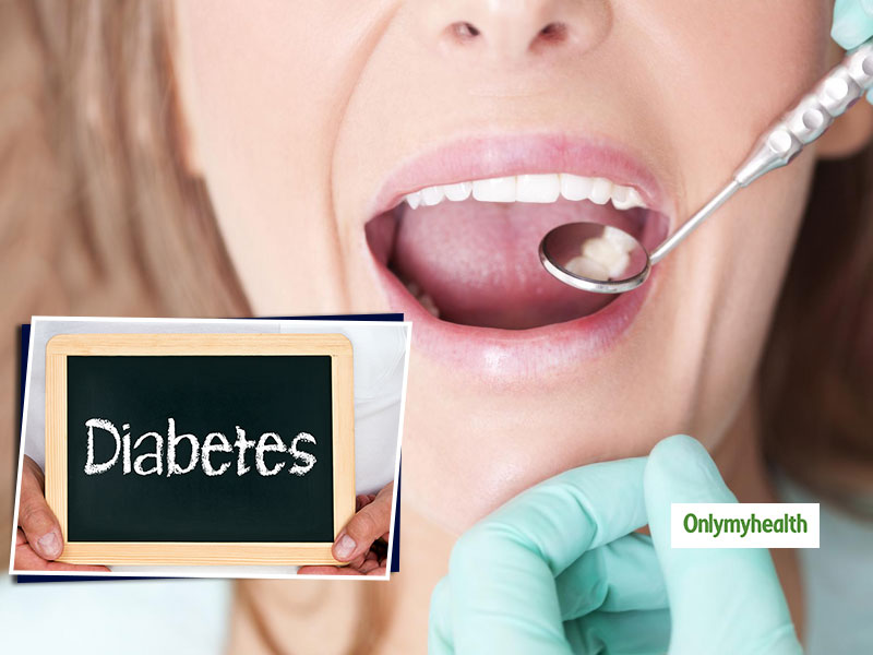 Type 2 Diabetes Oral Health Problems: 5 Simple Tips For Prevention