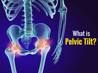 What Is Anterior Pelvic Tilt And How Can You Fix It?