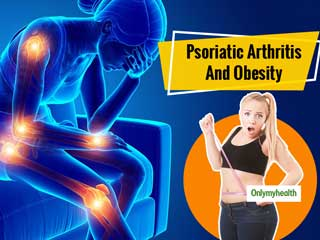 Being Obese May Affect Psoriatic Arthritis Patients