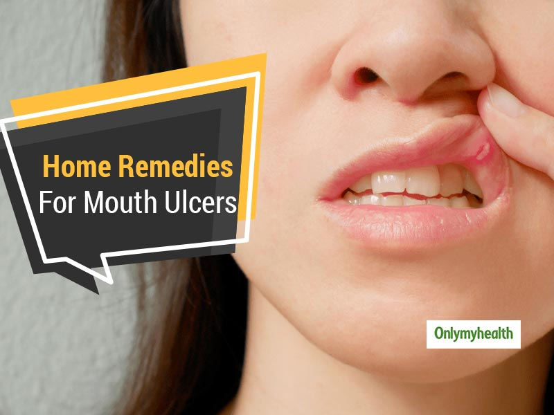 Troubled Due To Mouth Ulcers? Get Respite With These Home Remedies