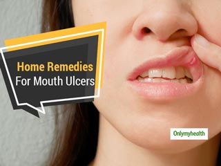 Troubled Due To <strong>Mouth</strong> Ulcers? Get Respite With These Home Remedies
