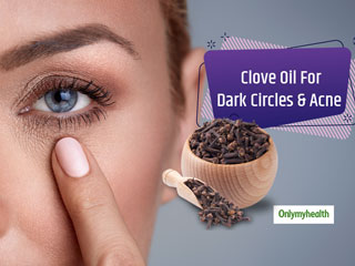 Bid Adieu To <strong>Acne</strong> And Dark Circles With Clove Oil