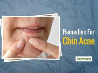 Chin Acne Giving You Sleepless Nights? Get Rid Of Acne With These Simple <strong>Tips</strong>