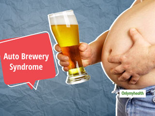 Auto Brewery Syndrome: Is It Possible To Brew Alcohol In The <strong>Stomach</strong>?