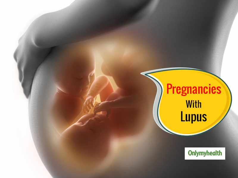Tips for Living with Lupus While Pregnant