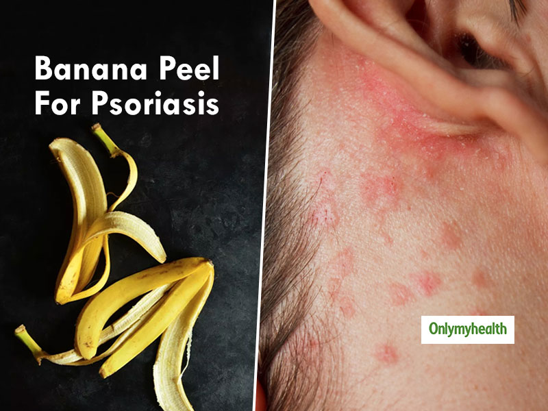How To Use Banana Peel For Psoriasis Treatment? | Home Remedies