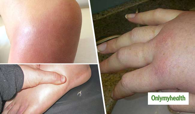 Women's Health Issues: 3 Reasons That Cause Swelling In The Body