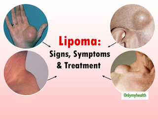 Bumps On The Skin Can Be Signs Of <strong>Lipoma</strong>. Know Everything About This Skin Problem
